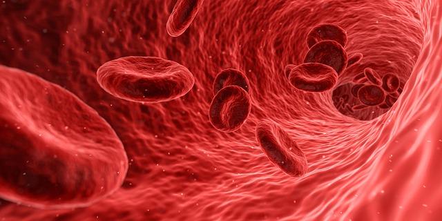tętniak krew żyła